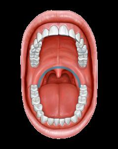 Uvulo palato faringoplastie - dr ioan bulescu