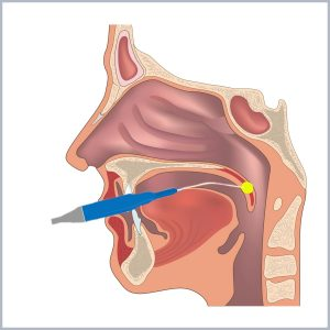 buton chirurgia valului palatin - dr ioan bulescu